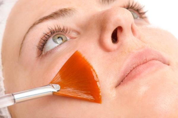 chemischem Peeling